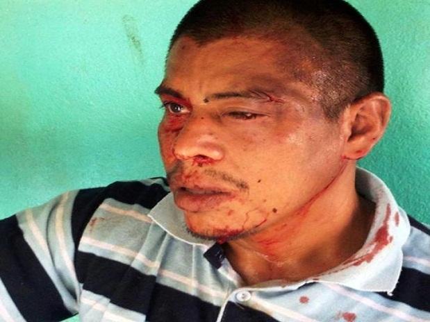 Madereros agreden brutalmente a indígena de Térraba